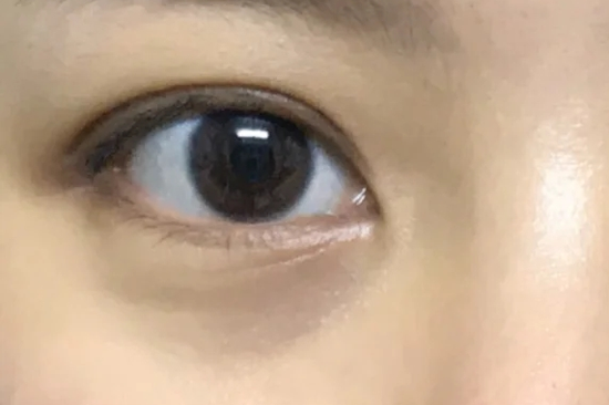 Young people who don't stay up late have no soul. Their eyes are not only fine lines插图33