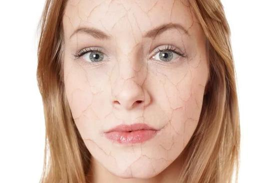 珍藏20年的干皮护肤心得 一般人我可不告诉她