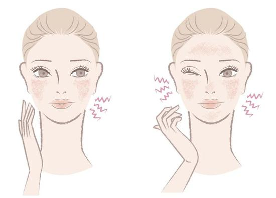 Face saving Guide: just give it to me插图4