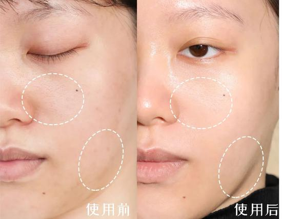 Autumn and winter must moisturize repair guide, double 11 according to buy right插图7