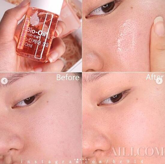 Large oil outlet pores in T zone? In winter, you should continue to \插图4