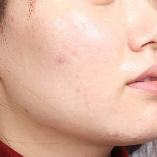 Don't clean in autumn and winter? No wonder your skin care products don't absorb插图35