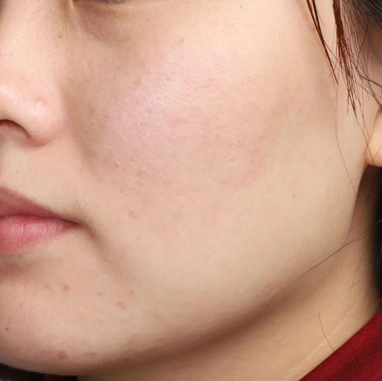 Don't clean in autumn and winter? No wonder your skin care products don't absorb插图31