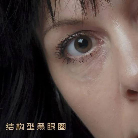 Young people who don't stay up late have no soul. Their eyes are not only fine lines插图19