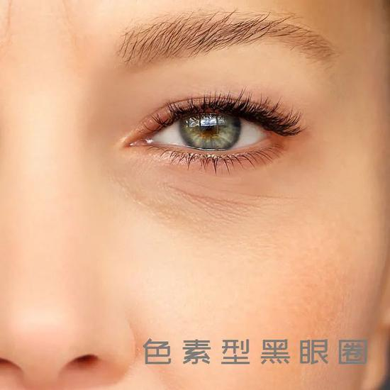 Young people who don't stay up late have no soul. Their eyes are not only fine lines插图17