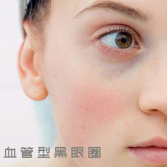 Young people who don't stay up late have no soul. Their eyes are not only fine lines插图18