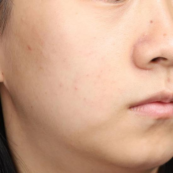 Don't clean in autumn and winter? No wonder your skin care products don't absorb插图6