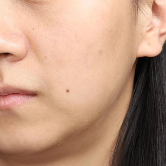 Don't clean in autumn and winter? No wonder your skin care products don't absorb插图12