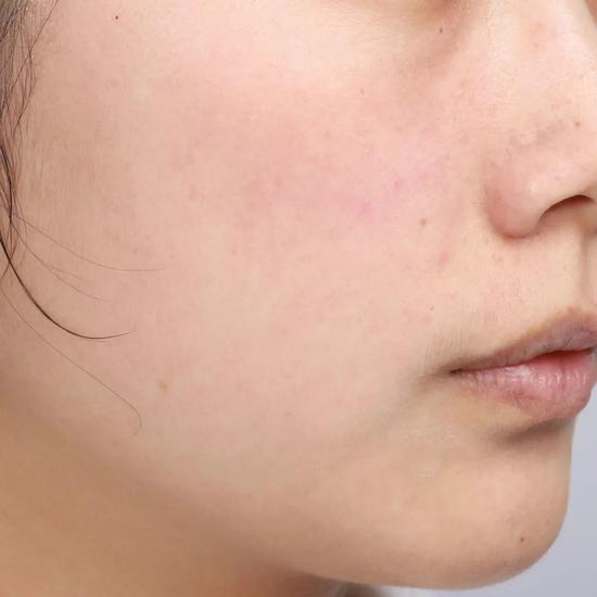 Don't clean in autumn and winter? No wonder your skin care products don't absorb插图19