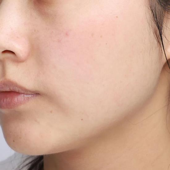 Don't clean in autumn and winter? No wonder your skin care products don't absorb插图25