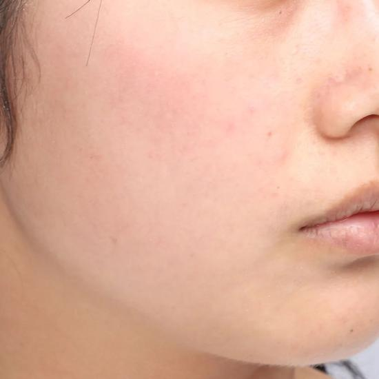 Don't clean in autumn and winter? No wonder your skin care products don't absorb插图18