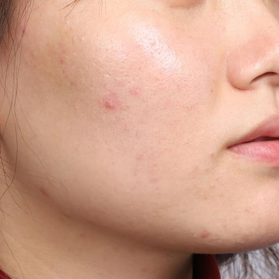 Don't clean in autumn and winter? No wonder your skin care products don't absorb插图36