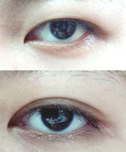 A long fat granule with eye cream? Ten years older, of course插图13
