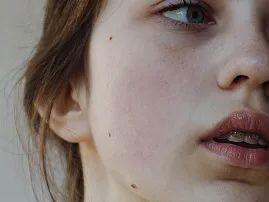 连皮肤敏感的原因都不知道 还妄想拯救敏感肌?