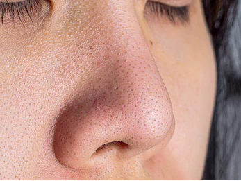 Too many blackheads, do not know how to do? You need the right medicine插图1