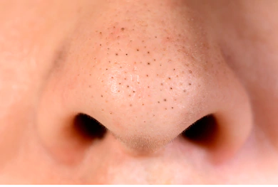 Too many blackheads, do not know how to do? You need the right medicine插图