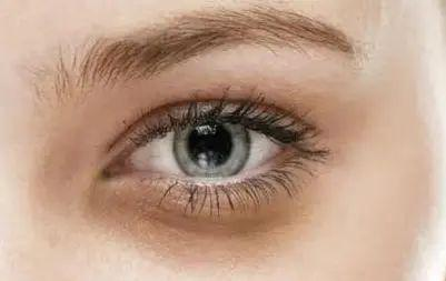 People with high face value are also troubled by dark circles? I suggest you take a look at this article插图8