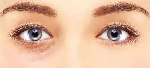 People with high face value are also troubled by dark circles? I suggest you take a look at this article插图9
