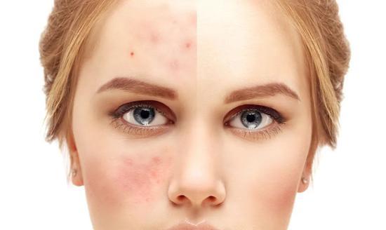 20岁和30岁护肤有什么不同?原来区别这么大