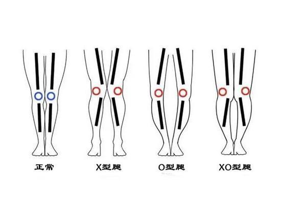 正常女生腿型_女星的大长腿也有这些缺陷 怎么练才能又细又直|瘦腿|美腿|腿型 ...