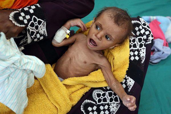 饿死了卡通图片_也门战争打了4年8.5万儿童饿死:连哭都没力气(图)|加齐|也门|儿童 ...