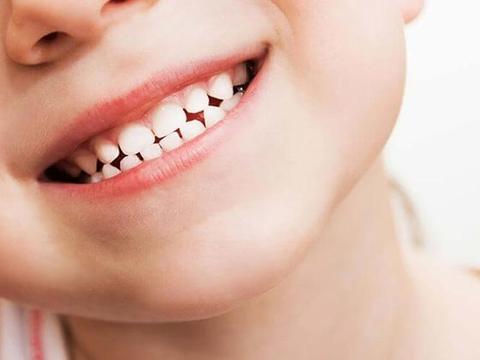 宝宝有蛀牙_警惕!宝宝龋齿危害大!没看这篇文章前,你不知孩子蛀牙有多可怕