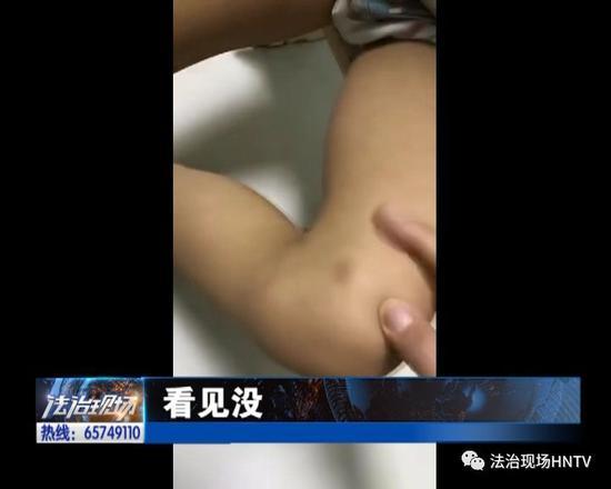 郑州多名幼儿被打 竟是老师下手? 教体局负责人回应