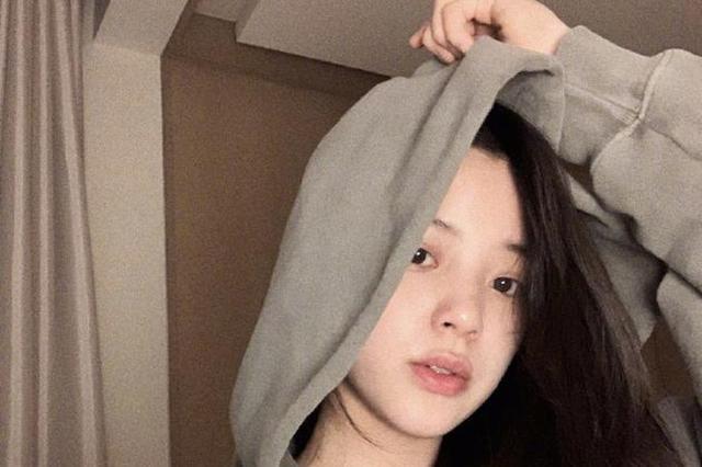 """欧阳娜娜深夜突肿成""""香肠嘴"""" 背后原因曝光"""