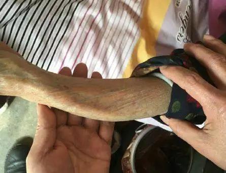 被打断后因断臂未得到固定和医治,愈合后手臂歪曲