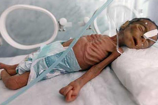 也门婴儿皮包骨似人型标本 战争5年全国陷饥荒