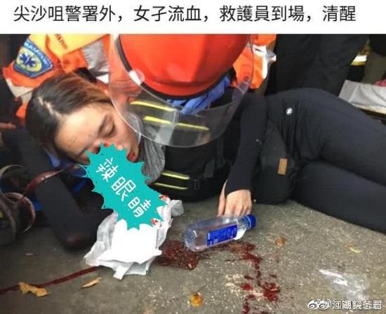 眼球受伤的女示威者 图自央视信息