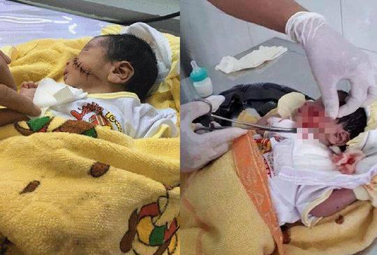 越南一新生儿疑被母亲活埋 脚露出地面被路人发现新生儿活埋男婴