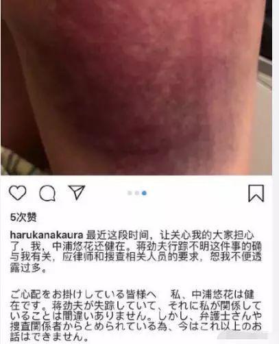 中浦悠花11月20日在社交媒体上曝光蒋劲夫涉嫌家暴。图自中浦悠花ins账号