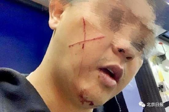 休班警长被割伤。图片来源:fb@葛珮帆