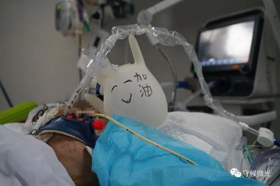 """2月29日早晨,武汉市第一医院负压ICU阻隔病房里,一位进走了气管插管的新冠肺热病人,大片面时间都处于晕厥状态。为了防止管道压在病人身上,护士用手套吹了一个气球,放在病人枕边,预防压疮。为了调节气氛,气球上画了一张乐脸,写着""""添油""""二字。中⻘报·中青网见习记者李强/摄"""