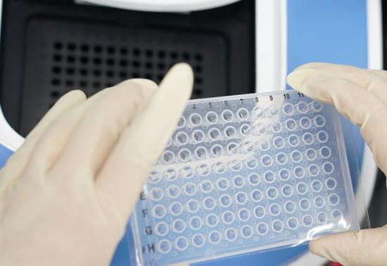 曹晶晶检验医师将处理完成的样本放入PCR核酸扩增仪,之后经过1个半小时等待可以读取最终数据。