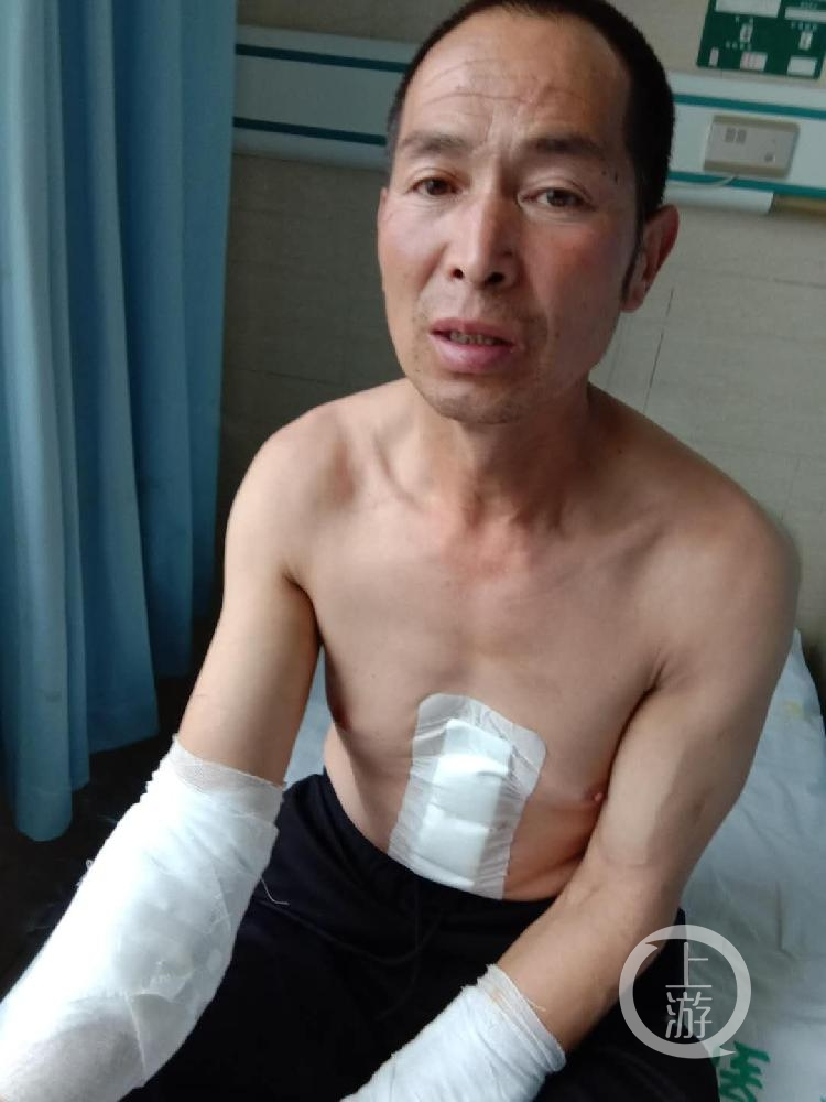 在合力打死王雷之前,王新元胸腹、腿、双臂受伤