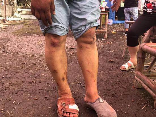 ▲地震后,赵宇的丈夫腿上全是刮痕。新京报记者 解蕾 摄