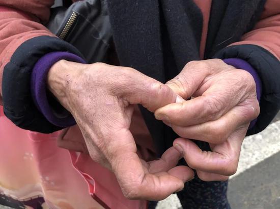 ▲文军红的手上布满狗咬的伤痕和干裂的伤口。骚作者不祥狠狠干记者王翀鹏程 摄
