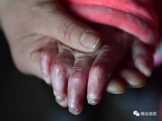 媛媛右手的四个指头,异国指尖也打不开了。