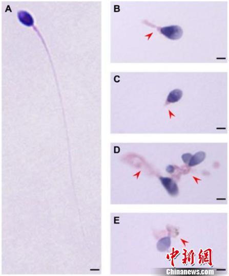 正常精子形态(A)和TTC21A基因缺陷患者的精子形态(B-E)。研究图