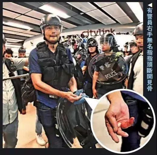 7月14日香港沙田,有警员被袭击受伤