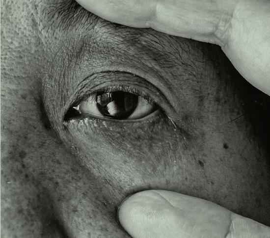 张希祉的母亲正用手撑开本身的眼睛,张希祉觉得,眼睛对于母亲而言犹如是一个出口,能让疼痛流出。