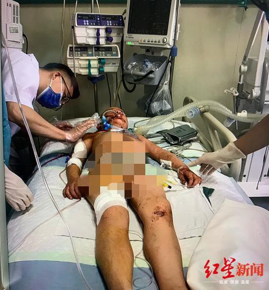 ↑被砍伤的小瑾在医院接受治疗。图据贵州广播电视台2频道官方微信