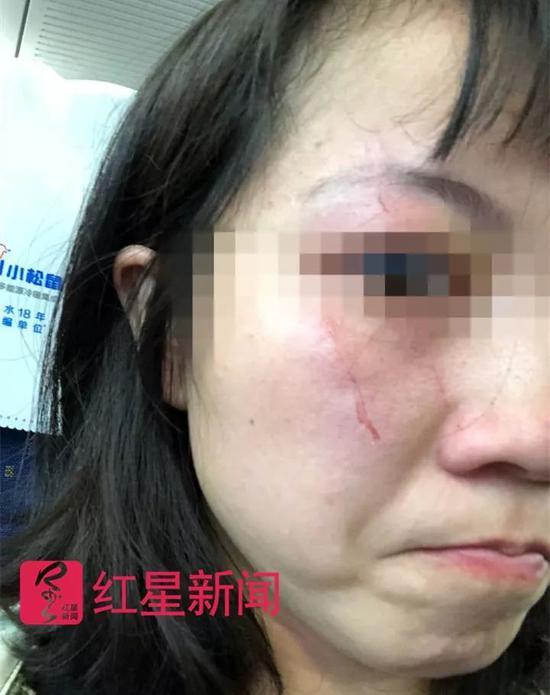 """""""占座大妈""""动车上抓伤劝让乘客:他们骂我不要脸"""