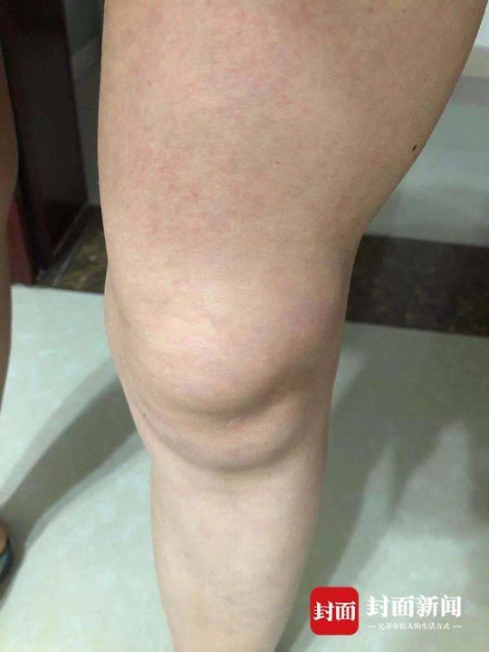 余女士称合作愉快伸出了右手出现积液的膝盖。