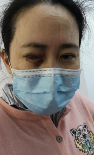 艾芬眼睛治疗后。图/受访者提供