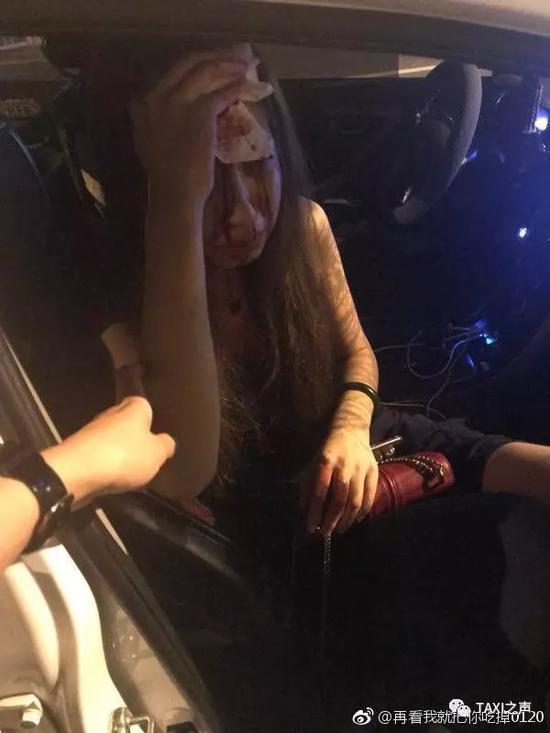 滴滴又出事 25岁女模特在北京坐快车惨被毁容