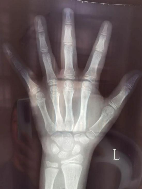 X光骨龄片/图源:受访者