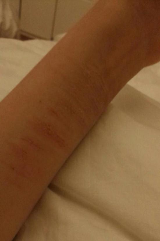 手臂上的伤痕。